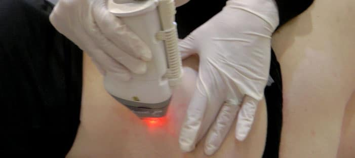laser de co2 para estrias