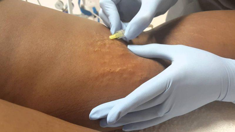 Tratamento com carboxiterapia para estrias