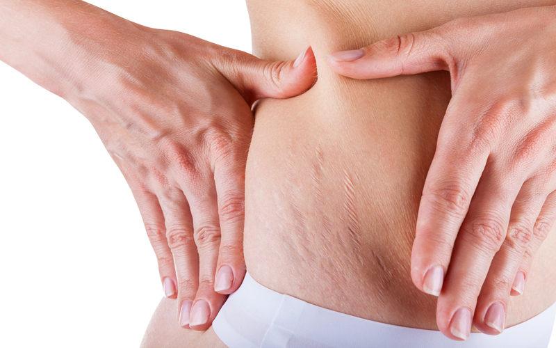 Mulher mostrando estrias na barriga